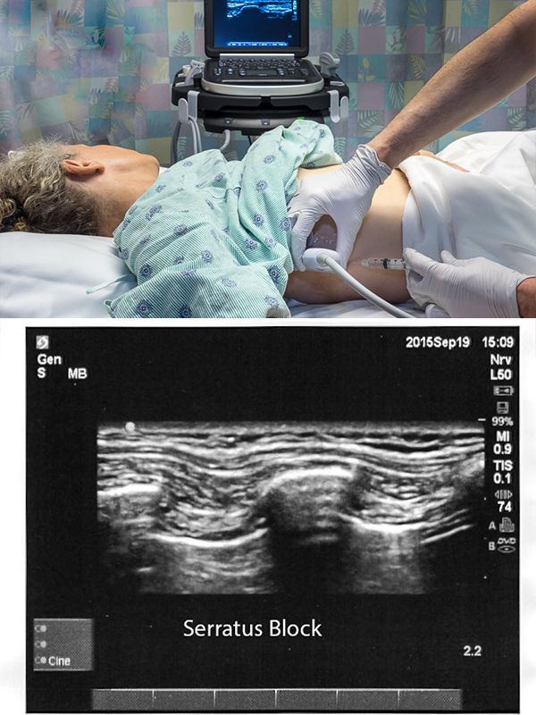Serratus plane block with ultrasound